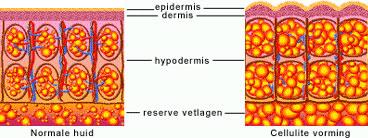 huid met cellulitevorming